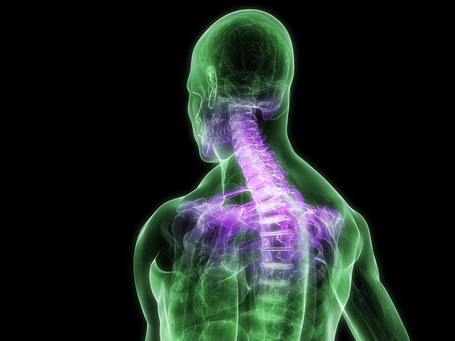 Rectificacion Cervical. Cómo Realizar Posturas Invertidas.  afc6c33a7453